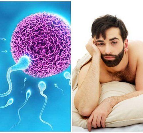 Tinh trùng có màu vàng có phải là bệnh lý ở nam giới không?