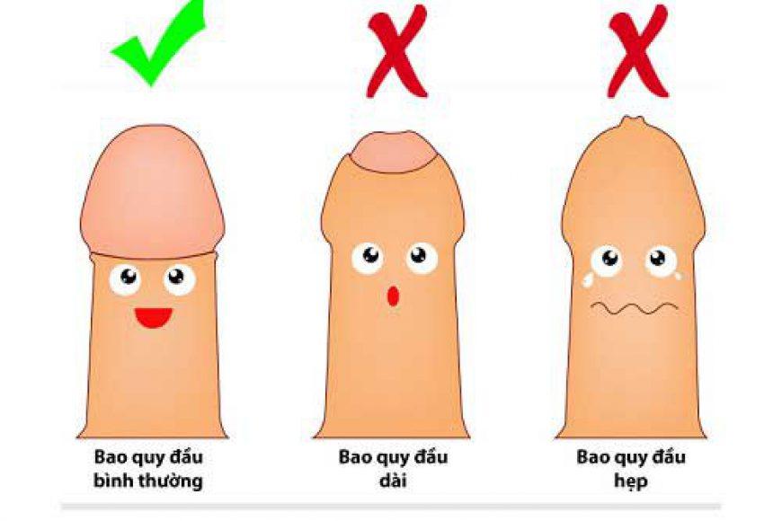[Giải đáp] Cắt bao quy đầu là gì? Khi nào nên cắt bao quy đầu?